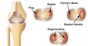meniscus tear surgery center in jaipur