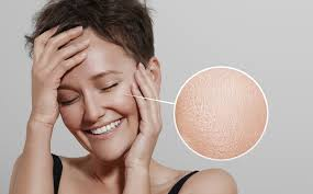 woman with lens on skin showing ideal skin do you have oily
