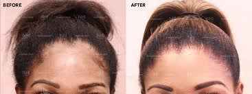 before and after forehead reduction
