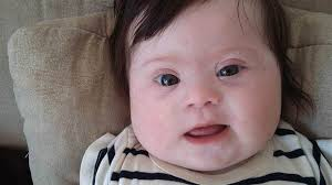 mom of baby down syndrome confronts comments in essay com