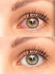 Image result for dry eye clinic