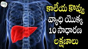 Fatty Liver Diet Chart In Telugu 10 Common Symptoms Of Fatty Liver Disease Telugu Timepass Tv