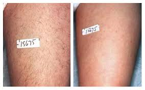 pulsed light hair removal does it work