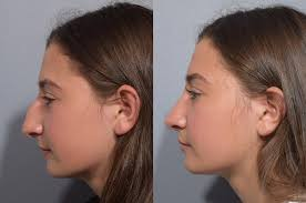 Teen rhinoplasty nose job