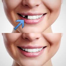 temporary tooth repair kit temp dental repair replace missing teeth diy