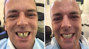people with horse teeth. Delighful Horse Anthony Corbett 45 Before And After His Smile Was Transformed In 3Dental  Dublin On People With Horse Teeth