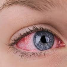 Pics Of Eyes Do Itchy Burning Eyes Mean You Have An Allergy Health24