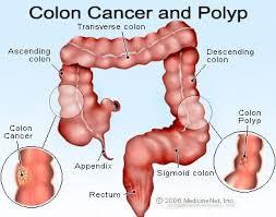 Colon Polyp Size Chart Colon Polyps Symptoms Pictures Types Causes Treatment