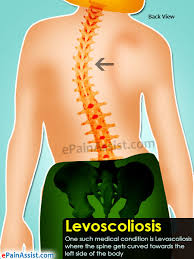 Levoscoliosis thoracic spine treatment