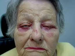 a patient with itchy swollen erythematous eyelids after using topical antibiotic solution post cataract extraction all images courtesy daniel shaw md