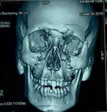 Le Fort Fracture Head Injury With Le Fort I Ii Maxillary Fracture With Csf