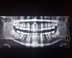 The good news is, most dental insurance plans cover wisdom tooth removal. Should I Take My Wisdom Teeth Out Is My One Side Of Jaw Smaller Or It S Out Of It S Place Help Tmj