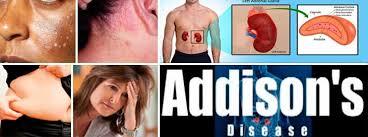 「addison's disease」の画像検索結果