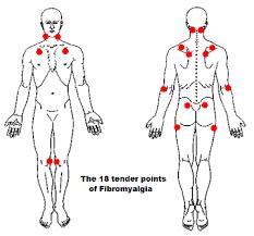Fibromyalgia Chart Fibromyalgia