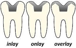Dental Inlay Inlays And Onlays Wikipedia