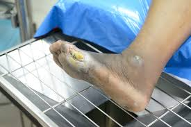 Classifying diabetic foot ulcers   Dermatology Times and Multimedia  Medical, LLC