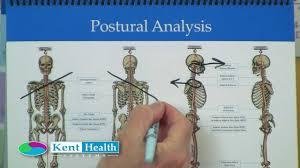 Postural Analysis Posture Assessment Kent Flip Chart