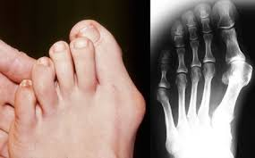 Doorgezakte voeten symptomen
