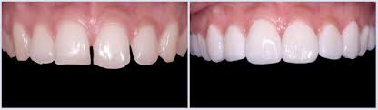 front teeth filing before and after. before-after-6 front teeth filing before and after