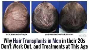 hair transplant how it works why hair transplants for men in their 20s dont work out and