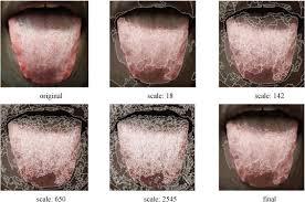 Advances In Automated Tongue Diagnosis Techniques