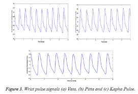 A Review Of Wrist Pulse Analysis