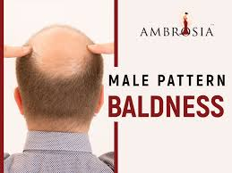 Male Pattern Baldness Causes Classy Male Pattern Baldness Causes And Treatment Ambrosia Clinic