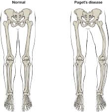Pngtree offers bone diagram png and vector images, as well as transparant background bone diagram clipart images and psd files. Bone Structure Anatomy And Physiology