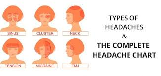 cluster headache location chart headache chart types of headaches causes symptoms