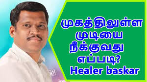 healer baskar unwanted hair removal