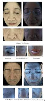 Skin Scanner Color Chart Skin Analyzer Malaysia Skin Observed System Skin Analysis