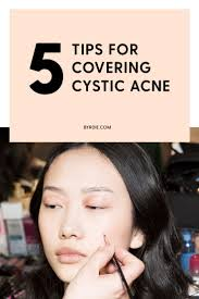 the best makeup for covering up cystic acne