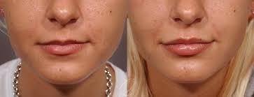 lip augmentation in rochester quatela
