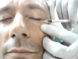 What Areas of the, face can Botox be injected?