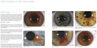 Pigmentation In The Ciliary Zone The Integrated Iridology