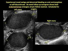 Myometrium may be normal or heterogeneous structure (then visualized areas of hyperechoic hormonal drug buserelin has high efficiency in the treatment of endometriosis of the uterus. Imaging The Endometrioma And Mature Cystic Teratoma Mdedge Obgyn