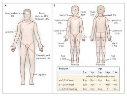 Rule Of 9 S For Burns Chart Excision And Skin Grafting Of Thermal Burns Nejm