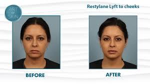 restylane lyft perlane filler for cheek lifting and balancing