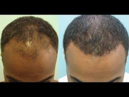 try this hair loss treatment to stimulate hair regrowth