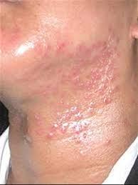 カポジ 水痘 様 発疹 症 治療