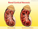 kidney cortex necrosis
