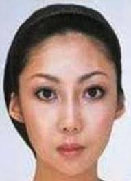 jian feng s wife after the surgery