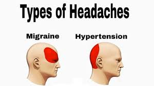 Hypertension Headache Location Chart Headache Location Chart Meme Www Bedowntowndaytona Com