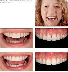 Dental Smile Design Albuquerque Pdf Clinical Performance Of Porcelain Laminate Veneers