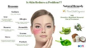 8 Natural Ways to Treat Skin Redness (Part 2) - PURAVEDA ORGANICS BLOG