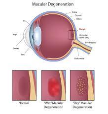 Macular Degeneration Paramus Eye Exam Paramus Metro Eye