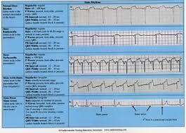 Cardiac Arrhythmias Reference Chart