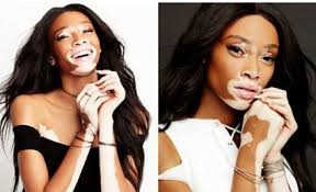 if you re looking to give mom a gorgeous gift that gives back i have a truly good and empowering suggestion activist and supermodel winnie harlow has