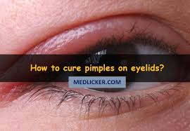 how to cure pimples on eyelids with cines and home remes