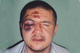 Картинки по запросу избиения полицейскими задержанных